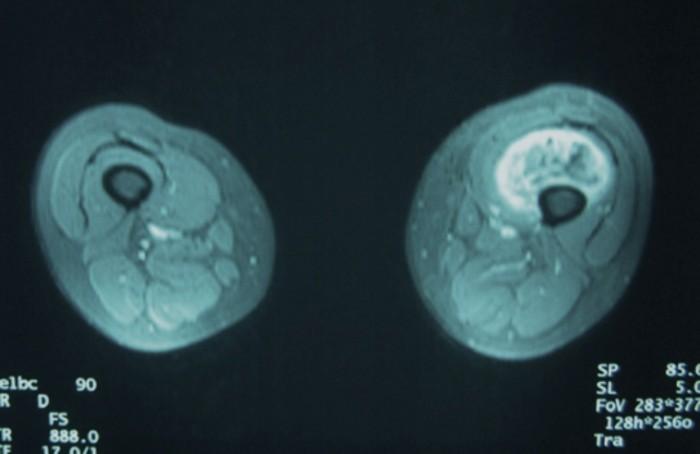 droscartendero-sarcoma-partes-blandas-sinovial-muslo-radiografia.jpg