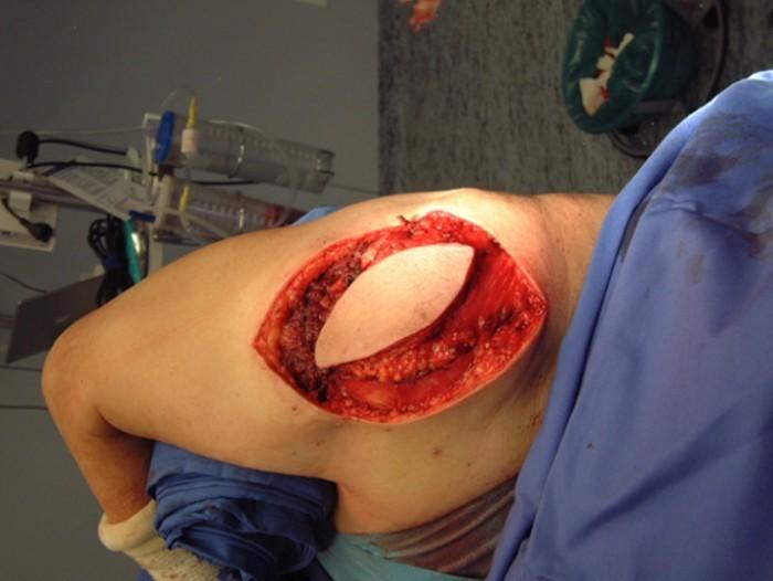 droscartendero-sarcoma-partes-blandas-cirugia-reconstructiva-cirgugia2.jpg
