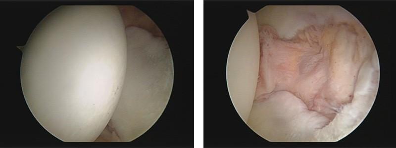 droscartendero-novedades-artroscopia-cadera-imagenes